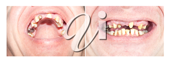 Royalty Free Photo of Two Views of a Man's Bad Teeth
