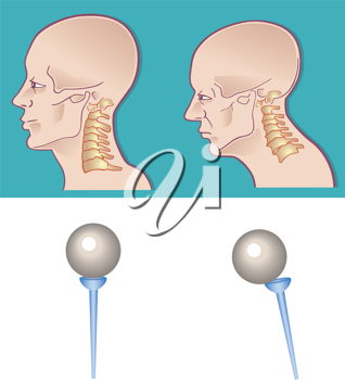 Royalty Free Clipart Image of a Cross Section of a Neck and Spine
