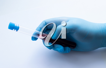 A doctor in blue disposable latex gloves is holding a test tube with a blood sample.