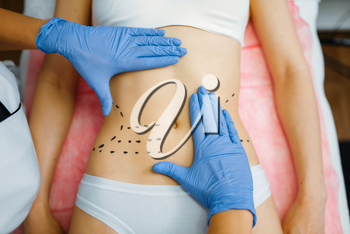 Cosmetician's hands on female patient abdomen, botox therapy preparation. Rejuvenation procedure in beautician salon. Cosmetic surgery against wrinkles and aging