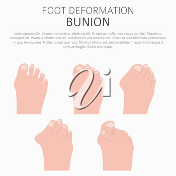 Foot deformation as medical desease infographic. Causes of bunion. Vector illustration