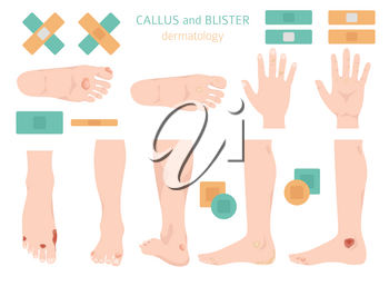 Callus, corn and blister feet and hands. Dermatology. Medical desease infographics collection. Vector illustration