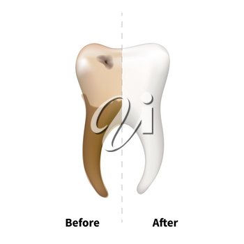Human tooth with old sick side with caries and bright white healthy another, teeth treatment dental concept on white